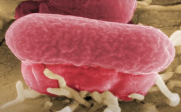 E-Coli-Bacteria-Pigeon-Disease